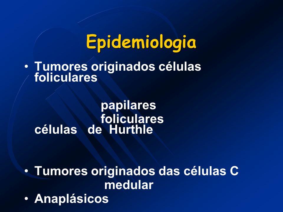 Carcinoma Folicular Representa 10% das neoplasias malignas da tireóide.
