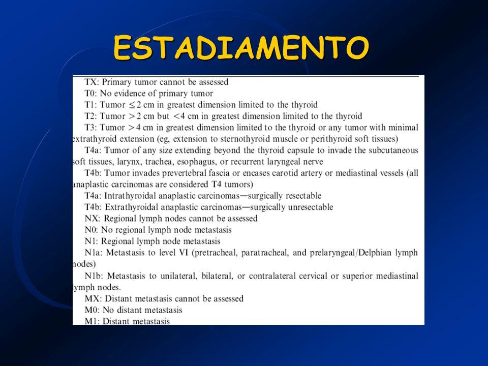 Carcinoma Medular -Tratamento: Tireoidectomia total com ressecção linfonodal.
