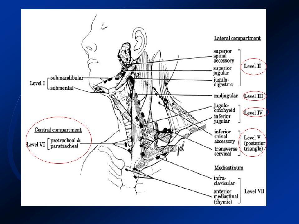 Carcinoma Papilar - Neoplasia maligna mais frequente da tireóide (70 e 80%).