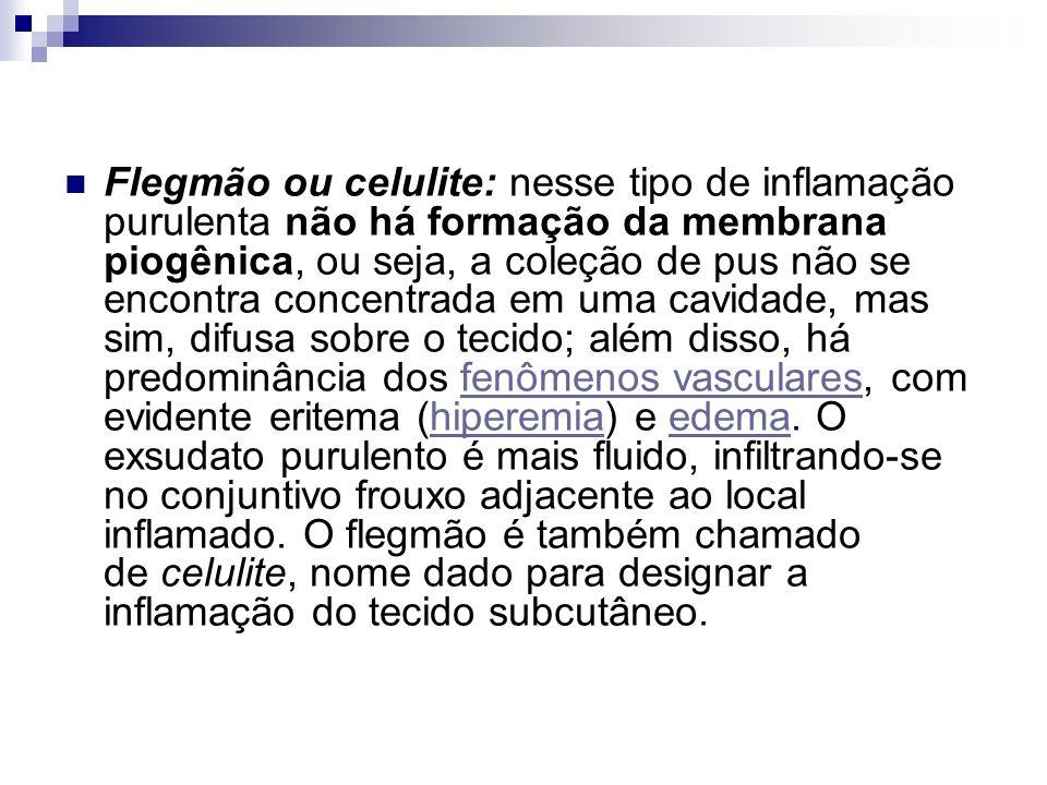 Flegmão ou celulite: nesse tipo de inflamação purulenta não há formação da membrana piogênica, ou seja, a coleção de pus não se encontra concentrada e