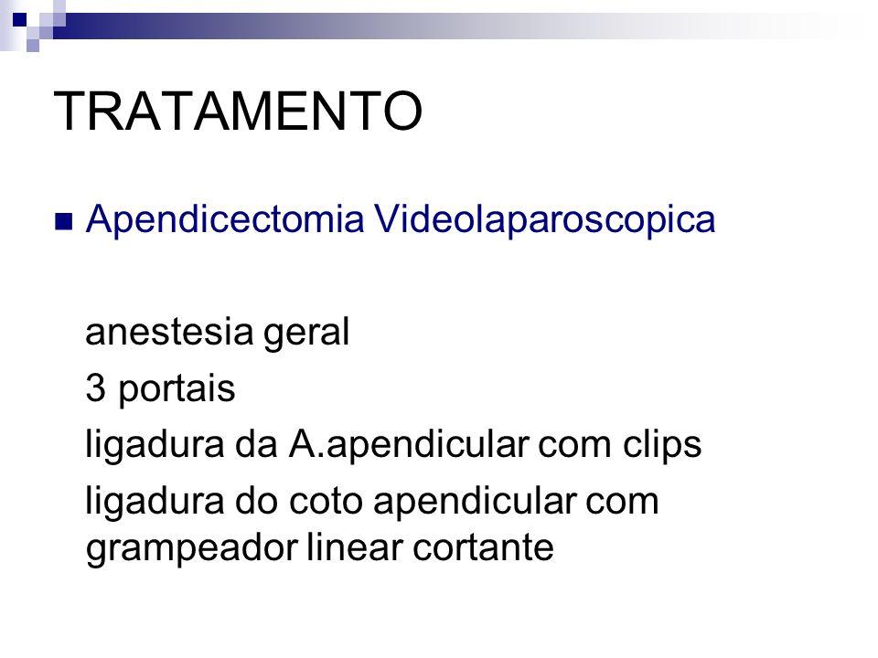 TRATAMENTO Apendicectomia Videolaparoscopica anestesia geral 3 portais ligadura da A.apendicular com clips ligadura do coto apendicular com grampeador