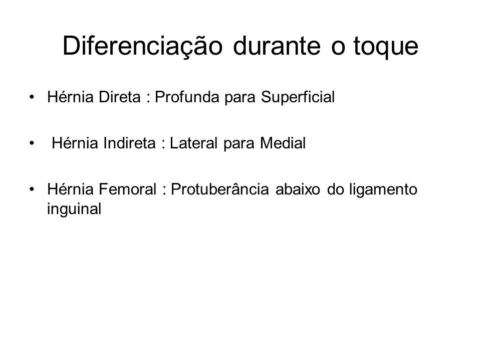 Diferenciação durante o toque Hérnia Direta : Profunda para Superficial Hérnia Indireta : Lateral para Medial Hérnia Femoral : Protuberância abaixo do