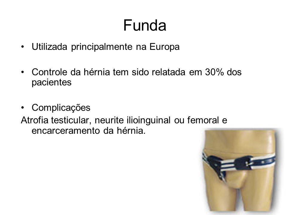 Funda Utilizada principalmente na Europa Controle da hérnia tem sido relatada em 30% dos pacientes Complicações Atrofia testicular, neurite ilioinguin