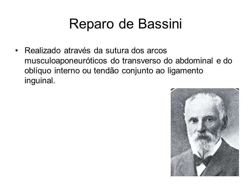 Reparo de Bassini Realizado através da sutura dos arcos musculoaponeuróticos do transverso do abdominal e do oblíquo interno ou tendão conjunto ao lig