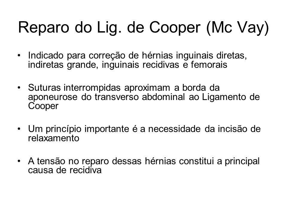 Reparo do Lig. de Cooper (Mc Vay) Indicado para correção de hérnias inguinais diretas, indiretas grande, inguinais recidivas e femorais Suturas interr