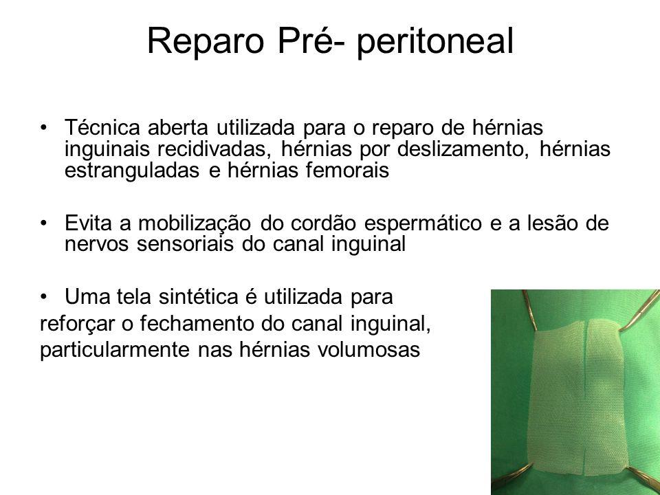 Reparo Pré- peritoneal Técnica aberta utilizada para o reparo de hérnias inguinais recidivadas, hérnias por deslizamento, hérnias estranguladas e hérn
