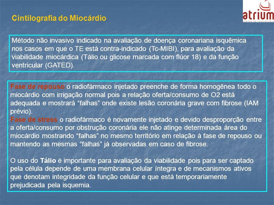 Cintilografia do Miocárdio Método não invasivo indicado na avaliação de doença coronariana isquêmica nos casos em que o TE está contra-indicado (Tc-MI