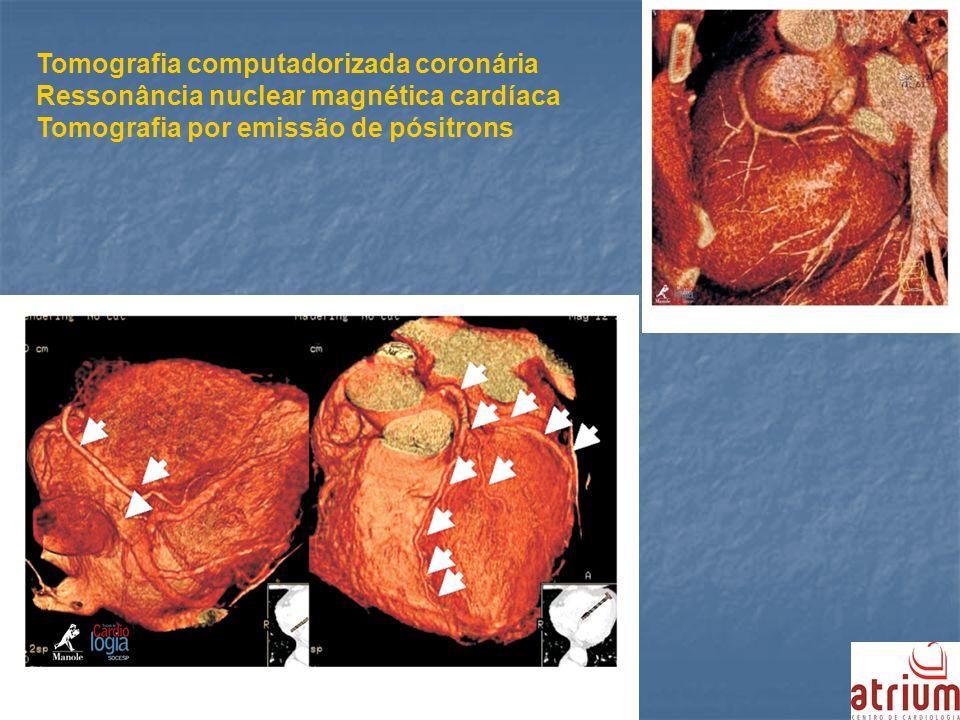 Tomografia computadorizada coronária Ressonância nuclear magnética cardíaca Tomografia por emissão de pósitrons