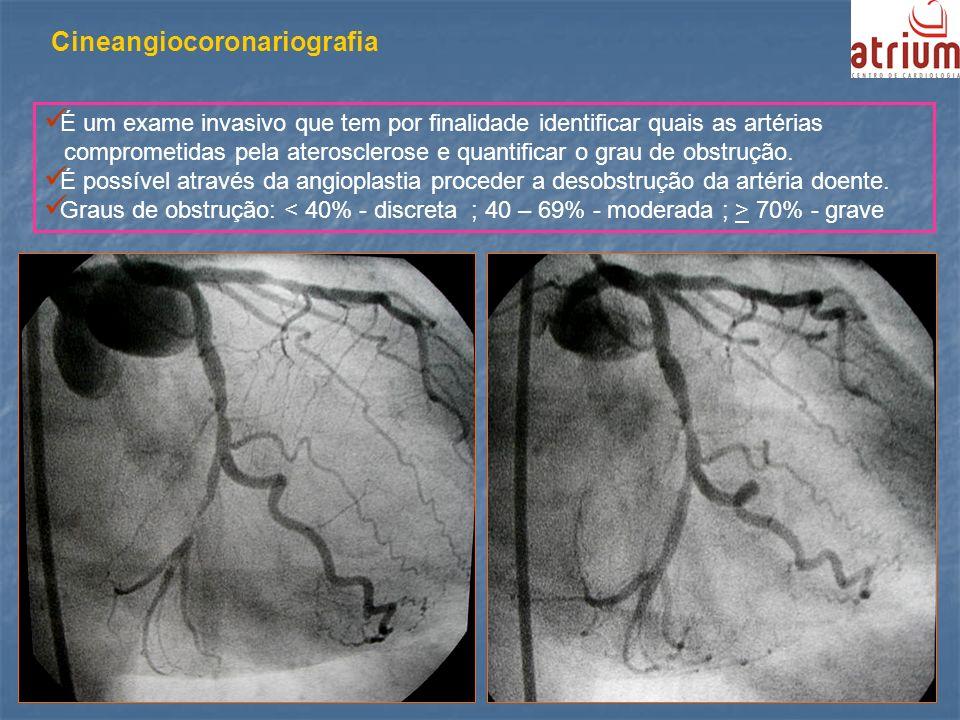 Cineangiocoronariografia É um exame invasivo que tem por finalidade identificar quais as artérias comprometidas pela aterosclerose e quantificar o gra