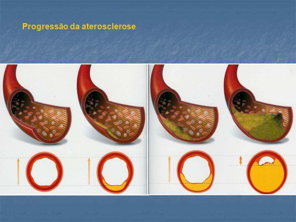 Progressão da aterosclerose