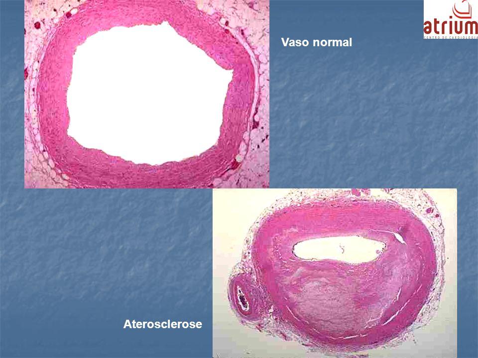 Vaso normal Aterosclerose