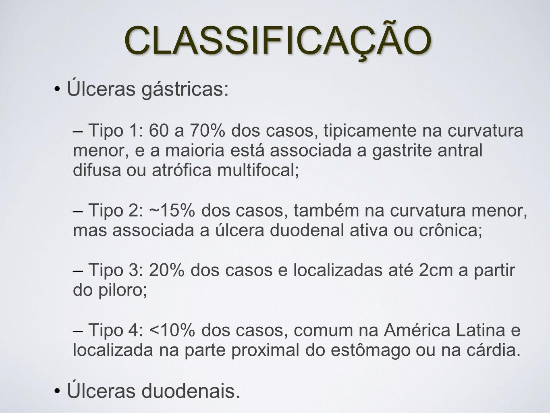 CLASSIFICAÇÃO Úlceras gástricas: – Tipo 1: 60 a 70% dos casos, tipicamente na curvatura menor, e a maioria está associada a gastrite antral difusa ou