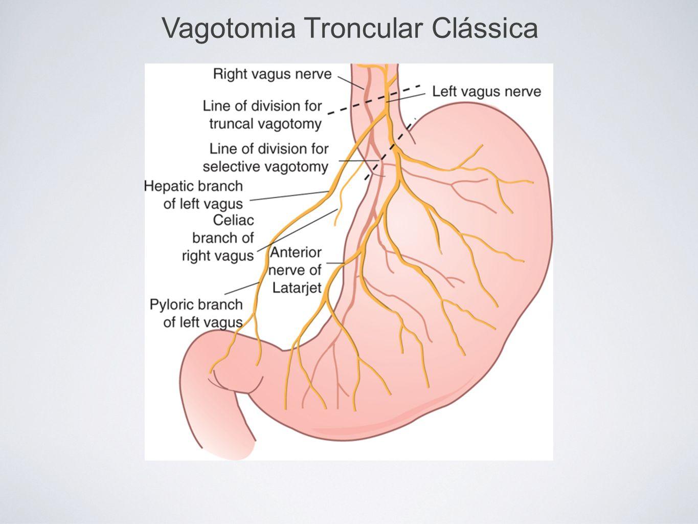 Vagotomia Troncular Clássica