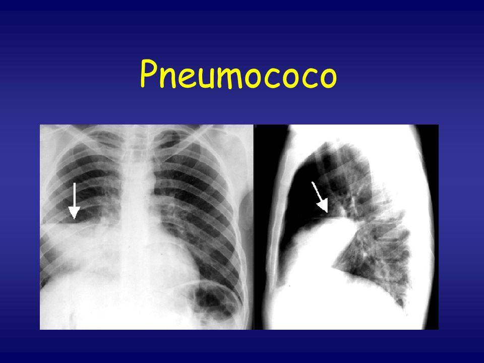 Pneumococo