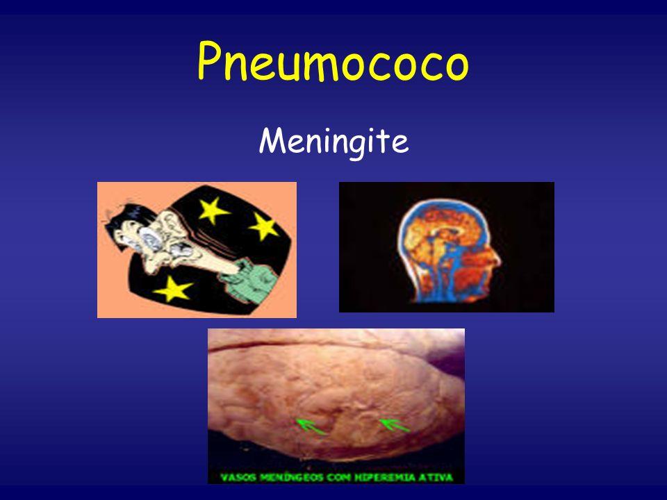 Pneumococo Meningite