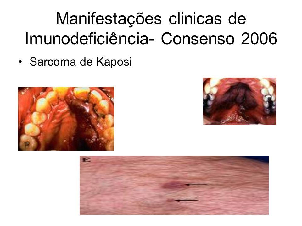 Manifestações clinicas de Imunodeficiência- Consenso 2006 Sarcoma de Kaposi