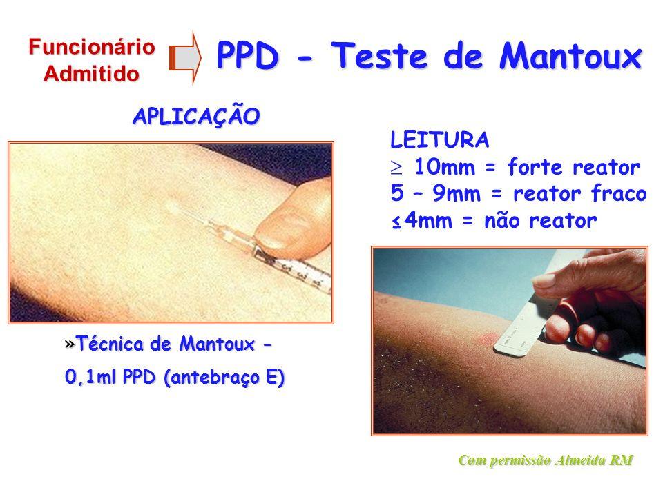 PPD - Teste de Mantoux APLICAÇÃO LEITURA 10mm = forte reator 5 – 9mm = reator fraco 4mm = não reator »Técnica de Mantoux - 0,1ml PPD (antebraço E) Com