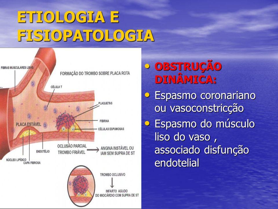 ETIOLOGIA E FISIOPATOLOGIA OBSTRUÇÃO DINÂMICA: OBSTRUÇÃO DINÂMICA: Espasmo coronariano ou vasoconstricção Espasmo coronariano ou vasoconstricção Espas