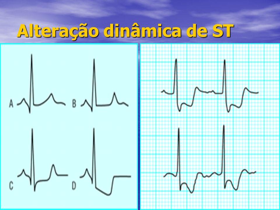 Alteração dinâmica de ST