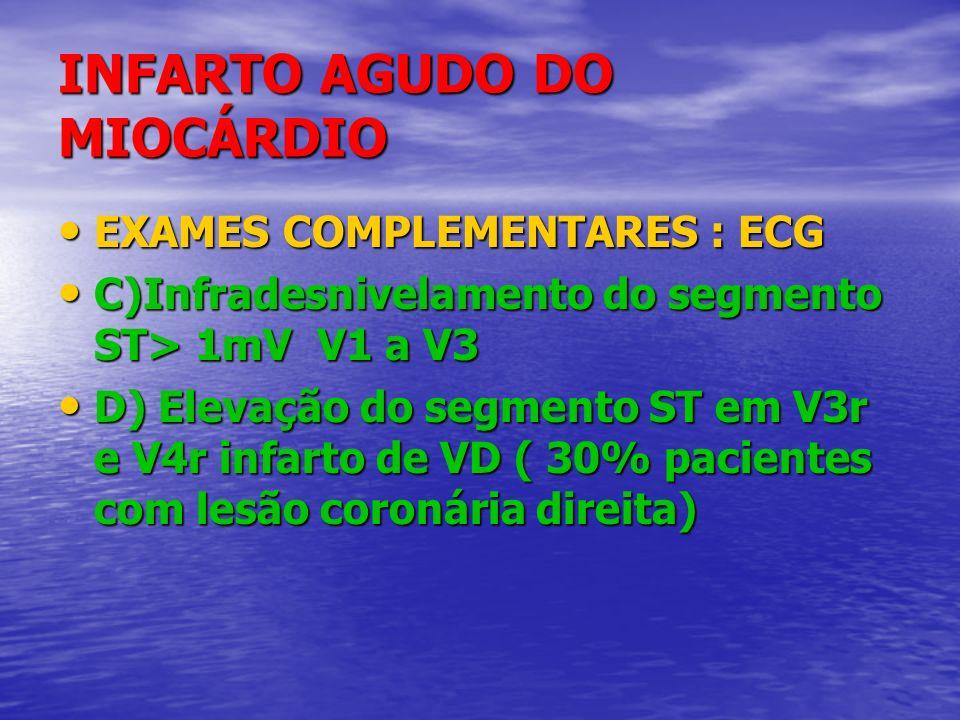 INFARTO AGUDO DO MIOCÁRDIO EXAMES COMPLEMENTARES : ECG EXAMES COMPLEMENTARES : ECG C)Infradesnivelamento do segmento ST> 1mV V1 a V3 C)Infradesnivelam