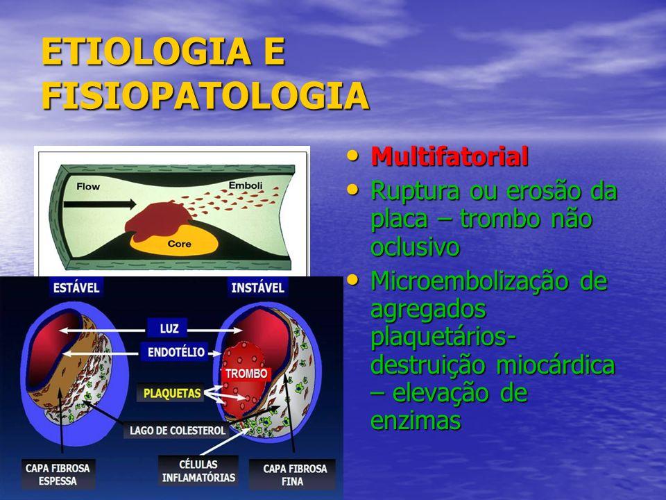 ETIOLOGIA E FISIOPATOLOGIA Multifatorial Multifatorial Ruptura ou erosão da placa – trombo não oclusivo Ruptura ou erosão da placa – trombo não oclusi