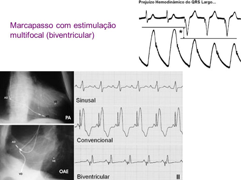 Marcapasso com estimulação multifocal (biventricular)