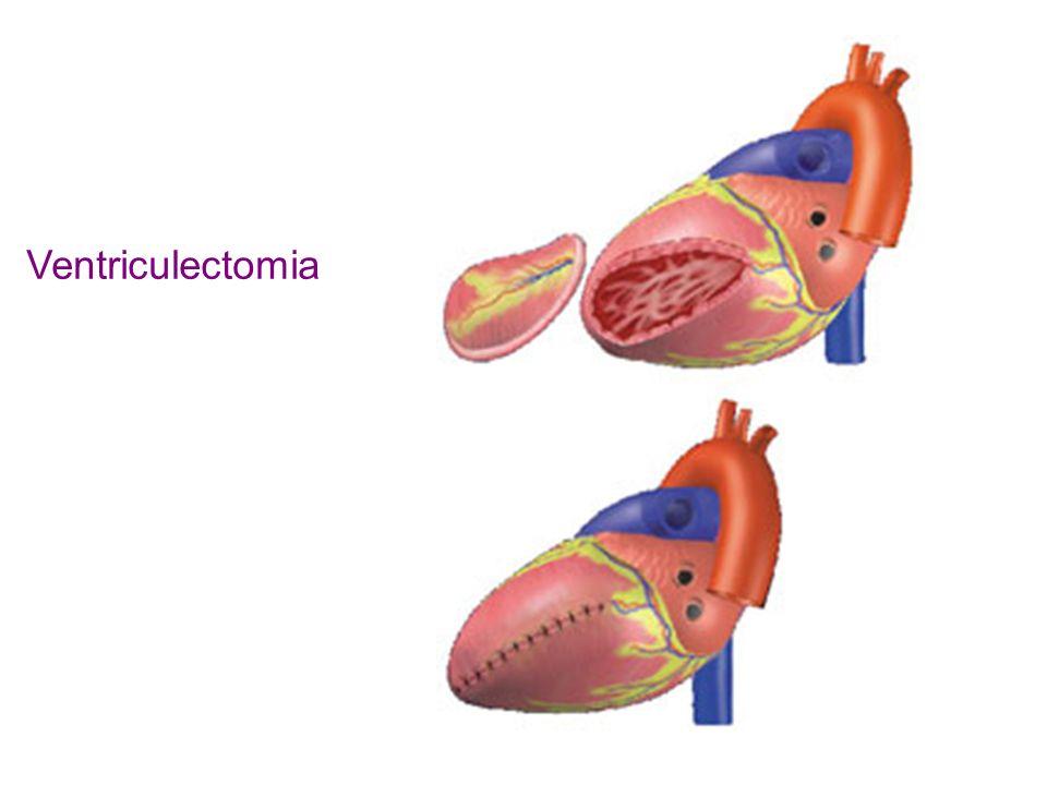 Ventriculectomia
