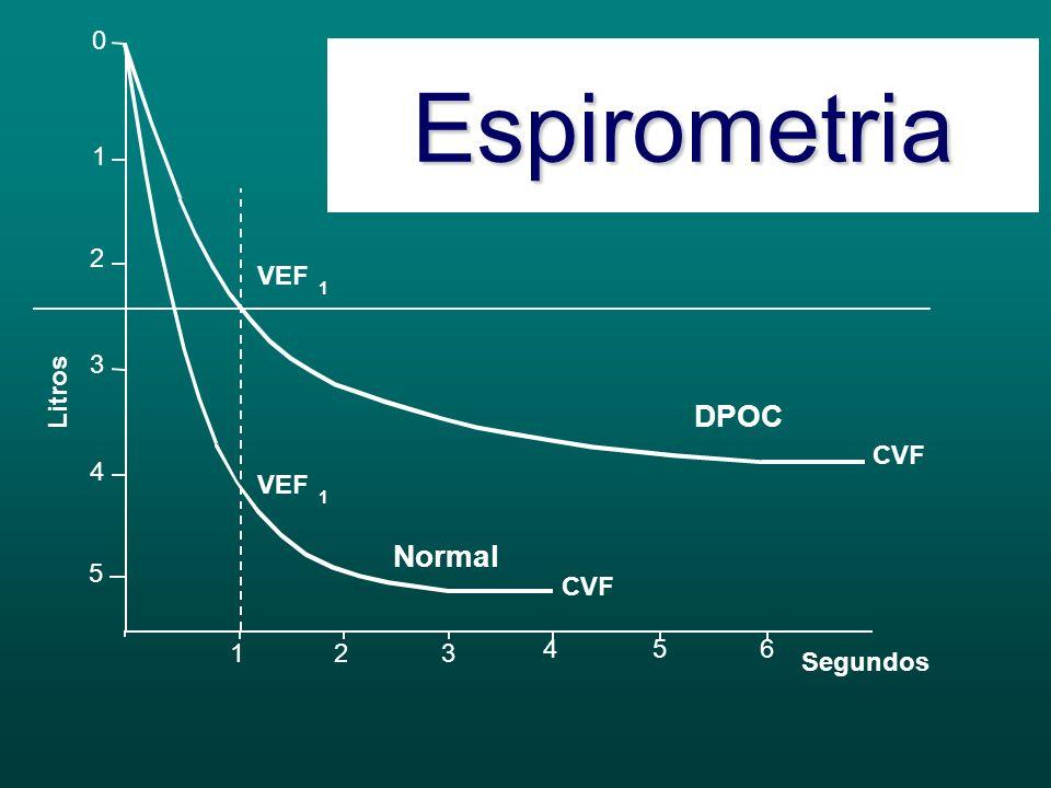0 5 1 4 2 3 Litros 1 654 32 CVF VEF 1 1 Normal DPOC 3.900 5.200 2.350 4.150 80 % 60 % Normal DPOC CVF VEF 1 CVF VEF 1 / Segundos Espirometria