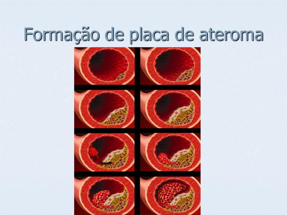 Formação de placa de ateroma