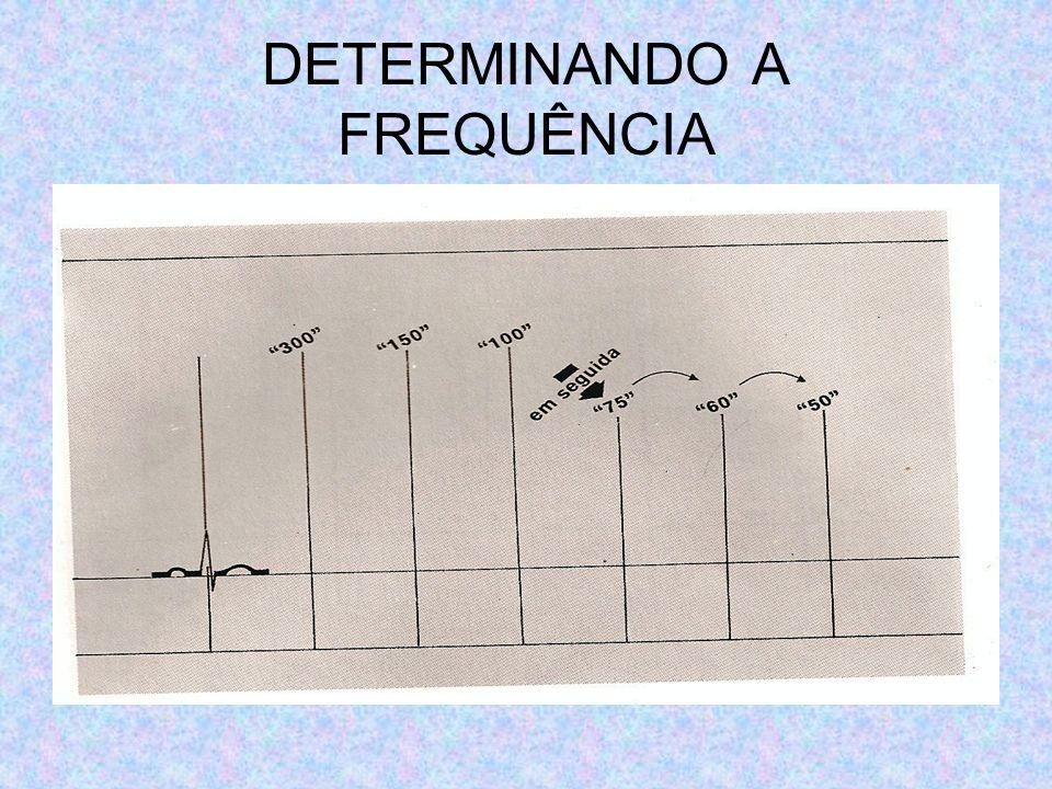 DETERMINANDO A FREQUÊNCIA