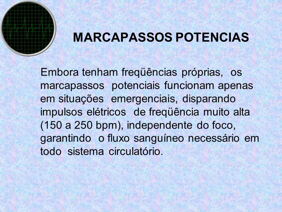 MARCAPASSOS POTENCIAS Embora tenham freqüências próprias, os marcapassos potenciais funcionam apenas em situações emergenciais, disparando impulsos el