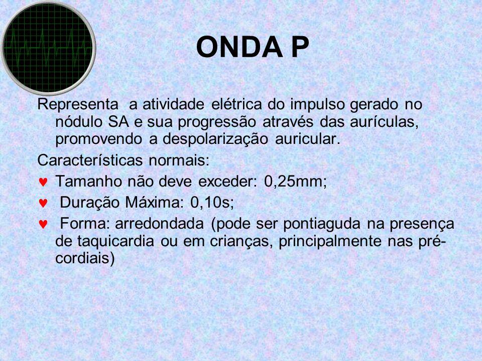 ONDA P Representa a atividade elétrica do impulso gerado no nódulo SA e sua progressão através das aurículas, promovendo a despolarização auricular. C