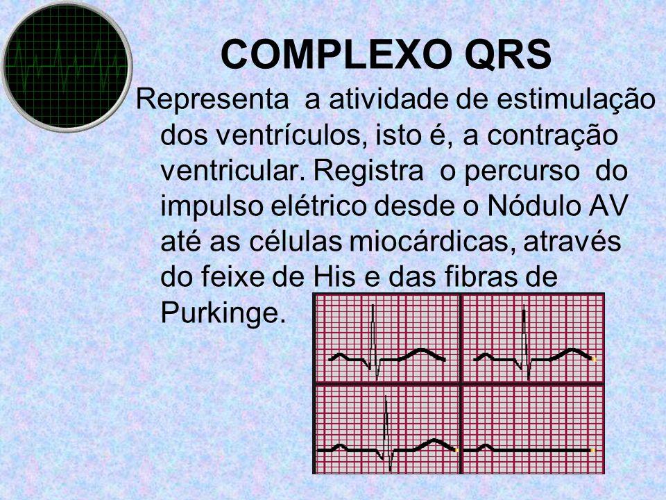 Representa a atividade de estimulação dos ventrículos, isto é, a contração ventricular. Registra o percurso do impulso elétrico desde o Nódulo AV até