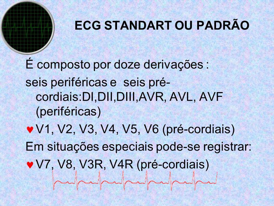 ECG STANDART OU PADRÃO É composto por doze derivações : seis periféricas e seis pré- cordiais:DI,DII,DIII,AVR, AVL, AVF (periféricas) V1, V2, V3, V4,