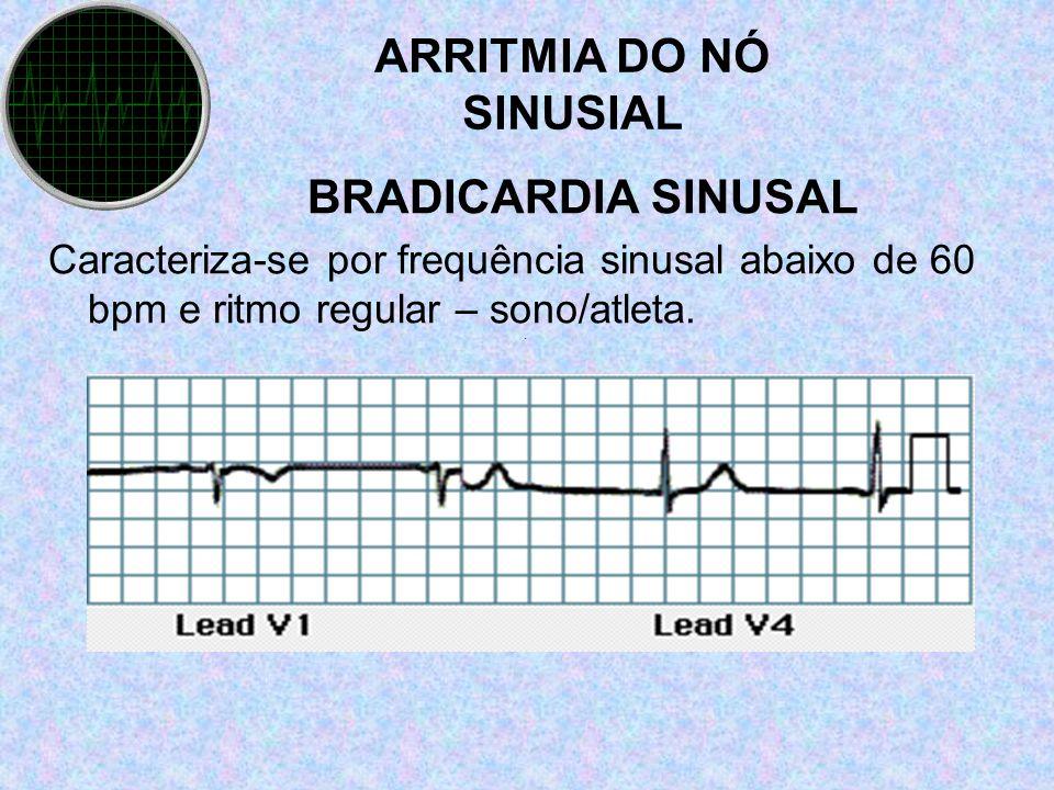 ARRITMIA DO NÓ SINUSIAL BRADICARDIA SINUSAL Caracteriza-se por frequência sinusal abaixo de 60 bpm e ritmo regular – sono/atleta..