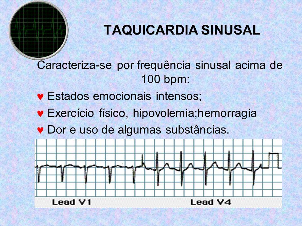 TAQUICARDIA SINUSAL Caracteriza-se por frequência sinusal acima de 100 bpm: Estados emocionais intensos; Exercício físico, hipovolemia;hemorragia Dor