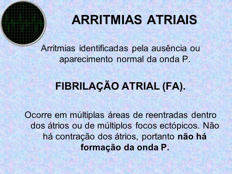 ARRITMIAS ATRIAIS Arritmias identificadas pela ausência ou aparecimento normal da onda P. FIBRILAÇÃO ATRIAL (FA). Ocorre em múltiplas áreas de reentra