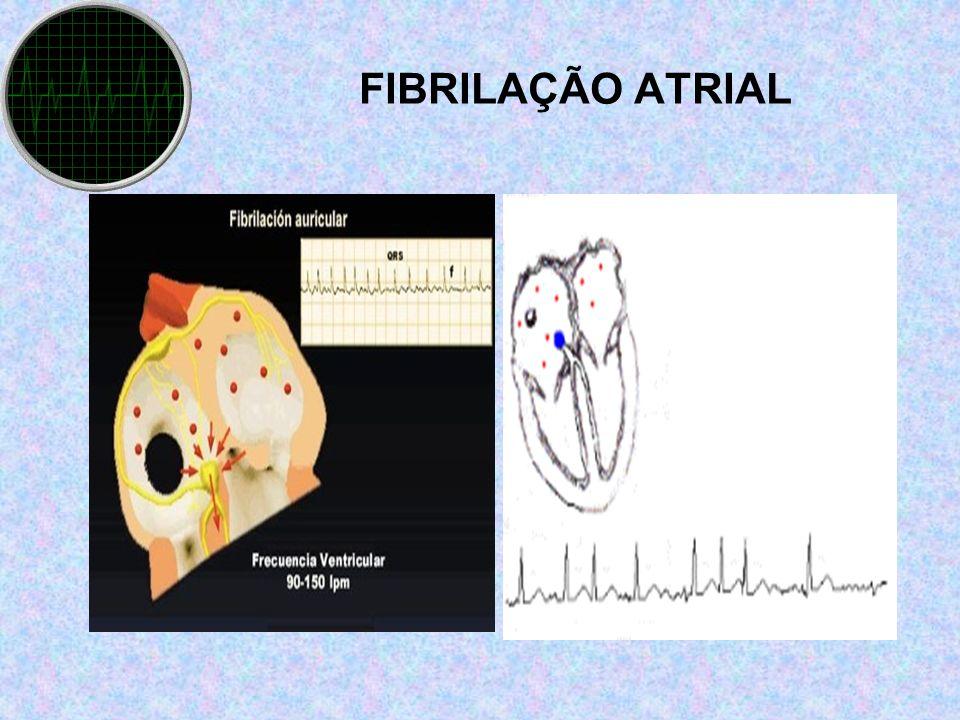 FIBRILAÇÃO ATRIAL