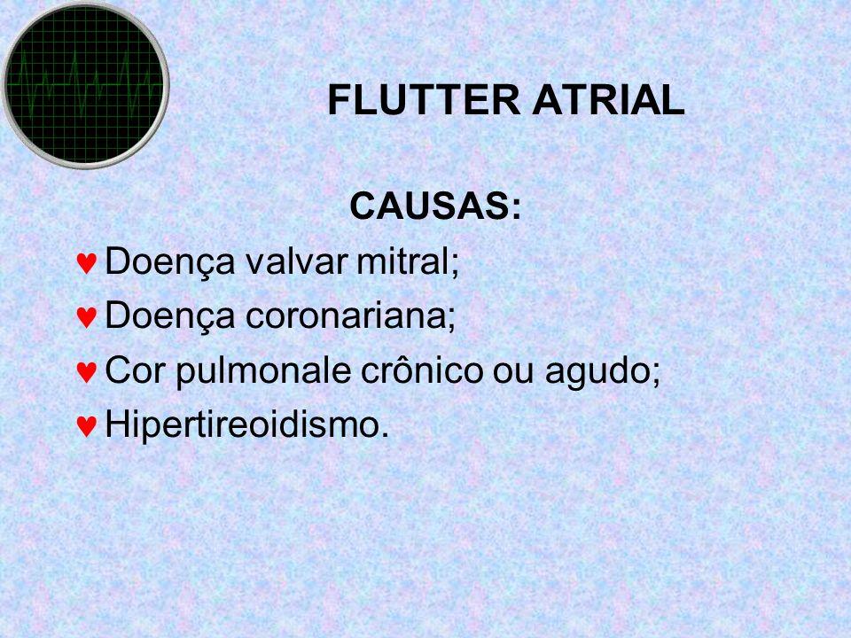 FLUTTER ATRIAL CAUSAS: Doença valvar mitral; Doença coronariana; Cor pulmonale crônico ou agudo; Hipertireoidismo.