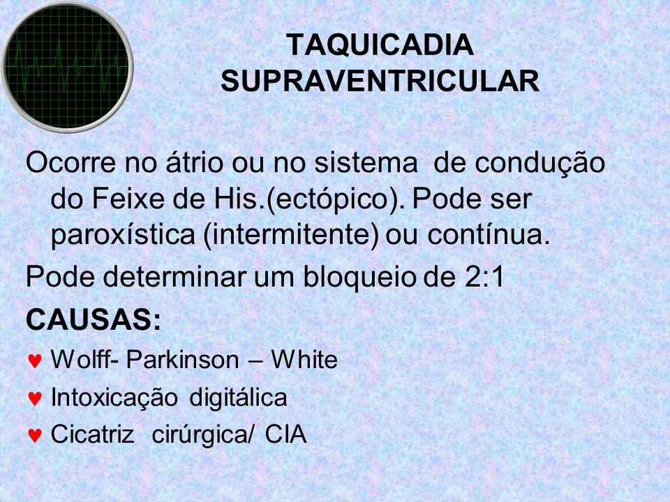 TAQUICADIA SUPRAVENTRICULAR Ocorre no átrio ou no sistema de condução do Feixe de His.(ectópico). Pode ser paroxística (intermitente) ou contínua. Pod