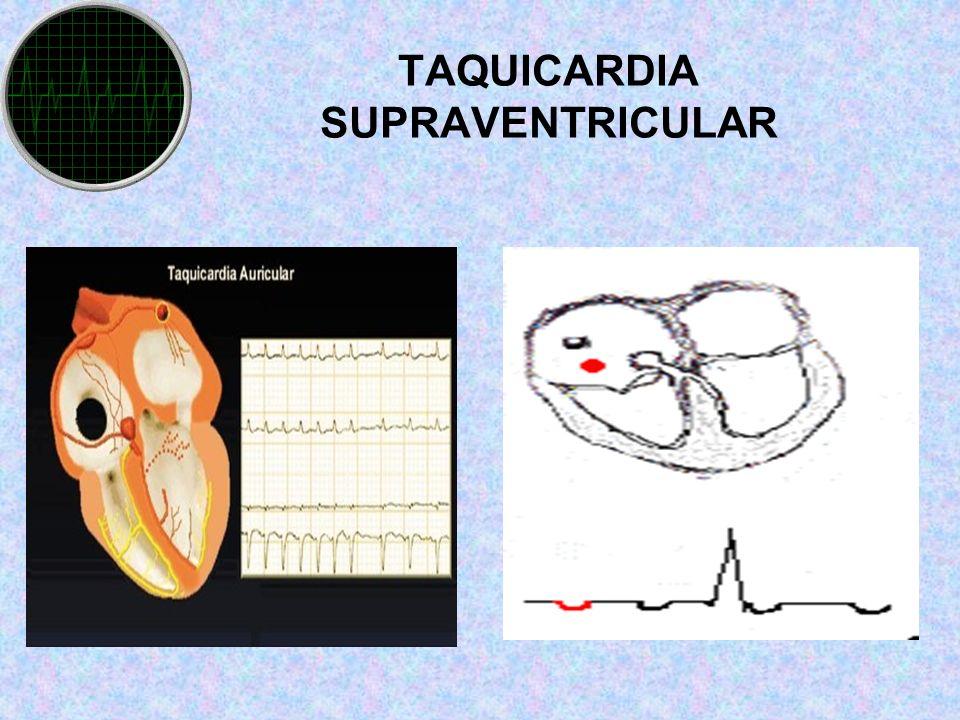TAQUICARDIA SUPRAVENTRICULAR.