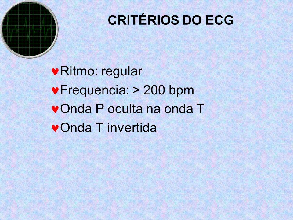 CRITÉRIOS DO ECG Ritmo: regular Frequencia: > 200 bpm Onda P oculta na onda T Onda T invertida
