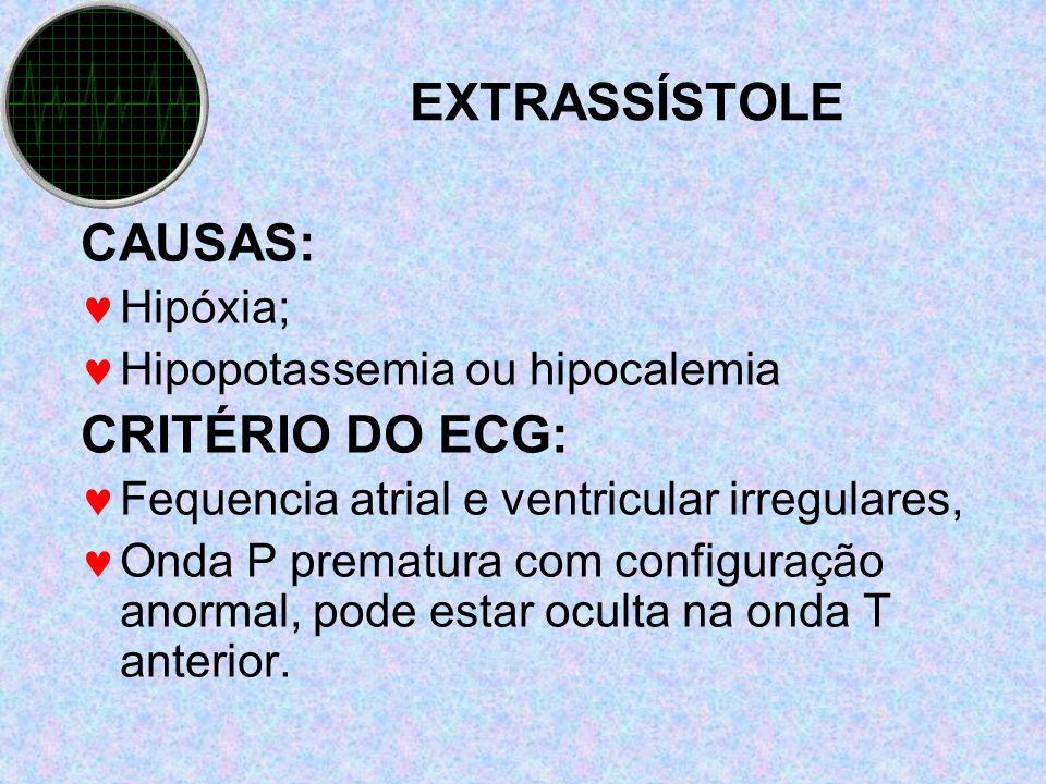 EXTRASSÍSTOLE CAUSAS: Hipóxia; Hipopotassemia ou hipocalemia CRITÉRIO DO ECG: Fequencia atrial e ventricular irregulares, Onda P prematura com configu