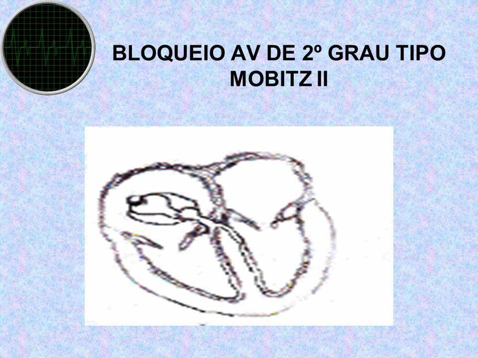 BLOQUEIO AV DE 2º GRAU TIPO MOBITZ II II