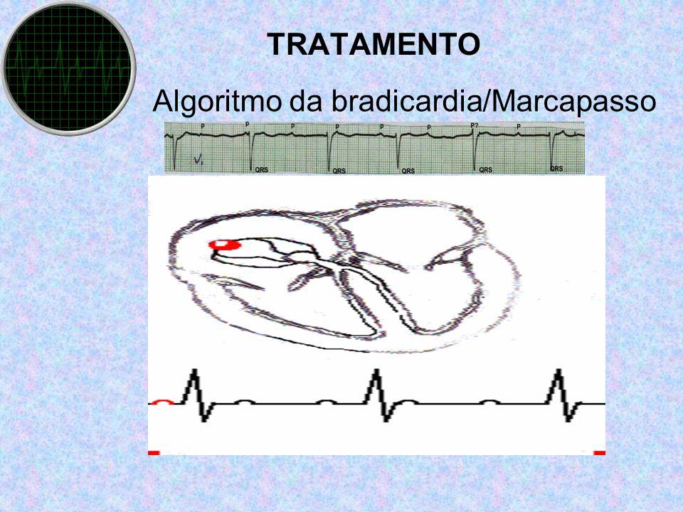 TRATAMENTO Algoritmo da bradicardia/Marcapasso