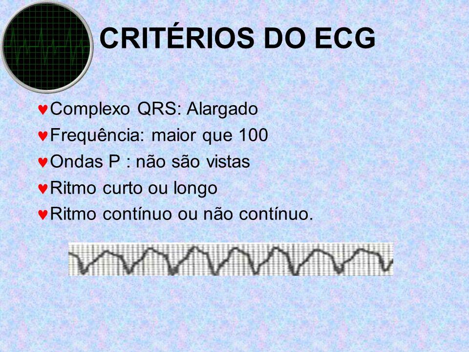CRITÉRIOS DO ECG Complexo QRS: Alargado Frequência: maior que 100 Ondas P : não são vistas Ritmo curto ou longo Ritmo contínuo ou não contínuo.