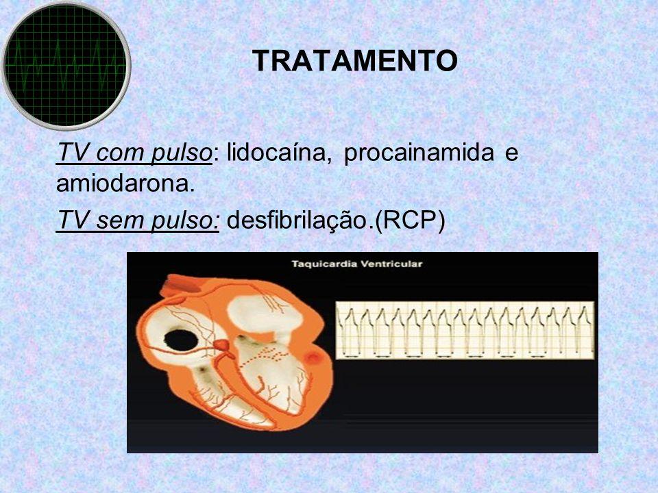 TRATAMENTO TV com pulso: lidocaína, procainamida e amiodarona. TV sem pulso: desfibrilação.(RCP)