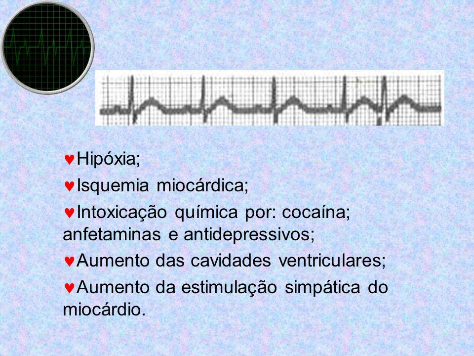 Hipóxia; Isquemia miocárdica; Intoxicação química por: cocaína; anfetaminas e antidepressivos; Aumento das cavidades ventriculares; Aumento da estimul