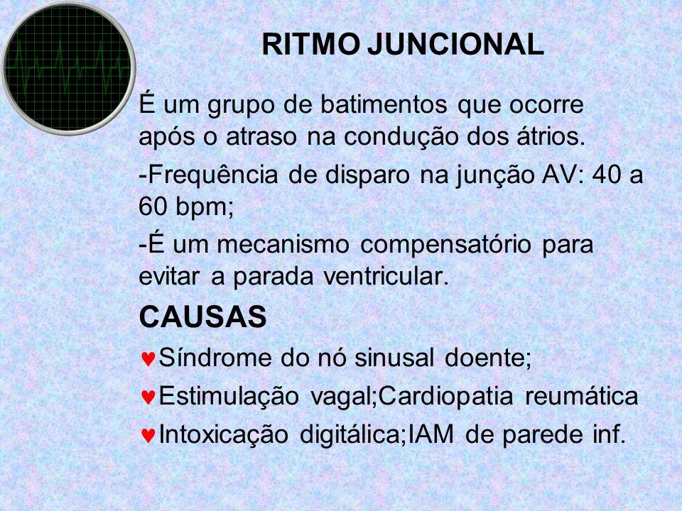 RITMO JUNCIONAL É um grupo de batimentos que ocorre após o atraso na condução dos átrios. -Frequência de disparo na junção AV: 40 a 60 bpm; -É um meca