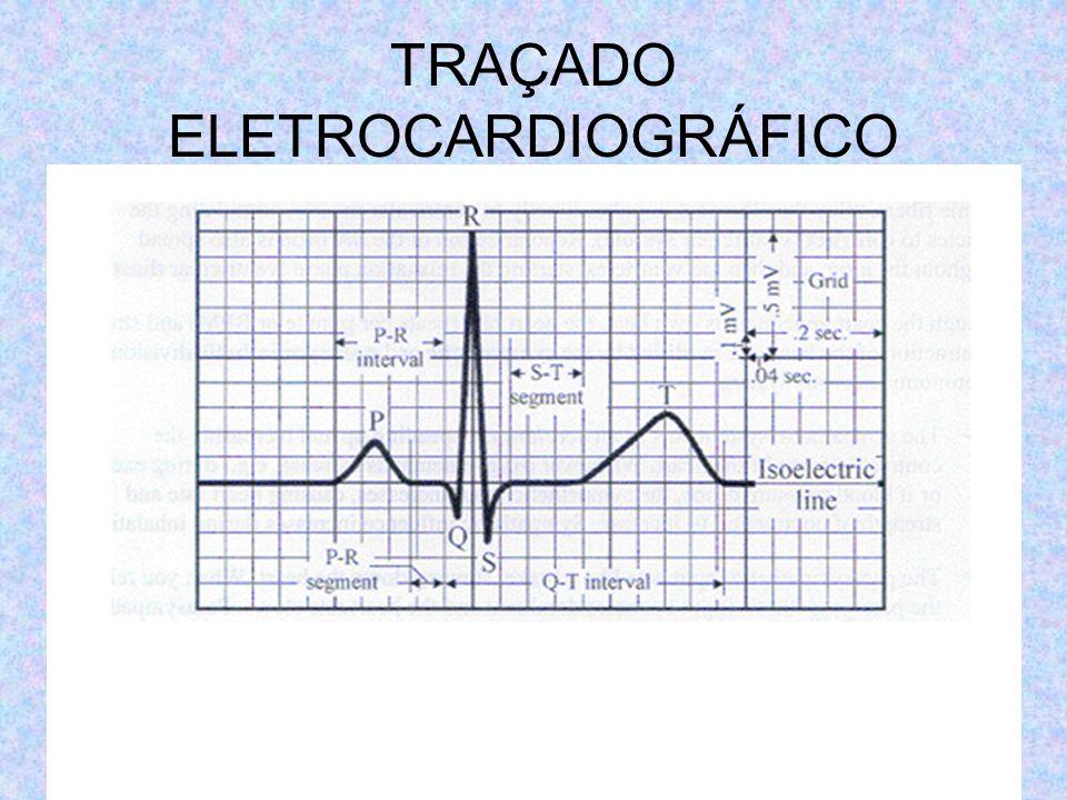 TRAÇADO ELETROCARDIOGRÁFICO